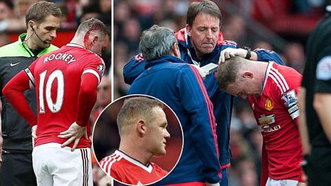 Bác sĩ M.U vá sống vết thương trong nháy mắt cho Rooney