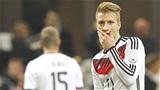 ĐT Đức & nỗi nhớ Marco Reus!