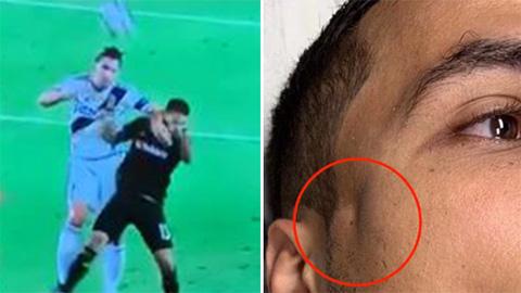 Ibra thúc cùi chỏ nứt xương sọ hậu vệ LAFC