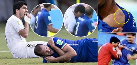 Hành vi của Luis Suarez đã tự hủy hoại danh tiếng của bản thân