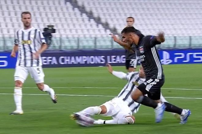 Pha bóng mà Juventus bị trọng tài thổi 11m oan uổng