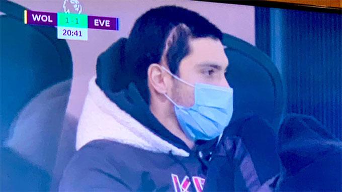 Raul Jimenez có vết sẹo dài ở trên đầu
