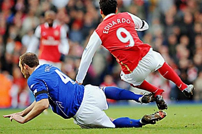 Eduardo phải nghỉ thi đấu dài hạn vì tai nạn này
