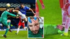 Những ca chấn thương khủng khiếp nhất trong bóng đá