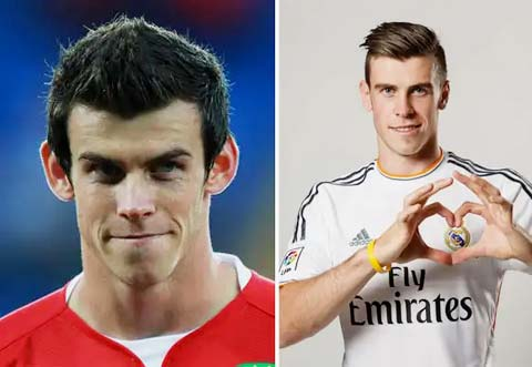 Bale vừa đẹp, vừa hay hơn sau khi sửa tai