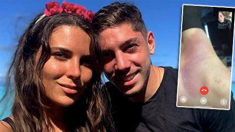 Vợ Valverde 'khoe' chân chồng sưng to vẫn đủ sức loại Liverpool