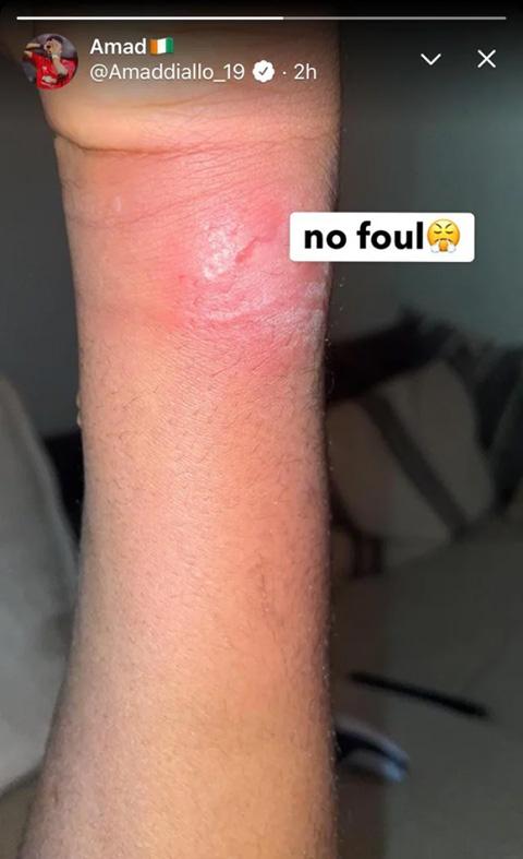 Hình ảnh cánh tay Diallo bị cầu thủ Granada làm chấn thương