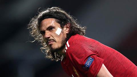 Đội hình dự kiến Roma vs MU: Cavani sẽ lại là 'cơn ác mộng' cho chủ nhà