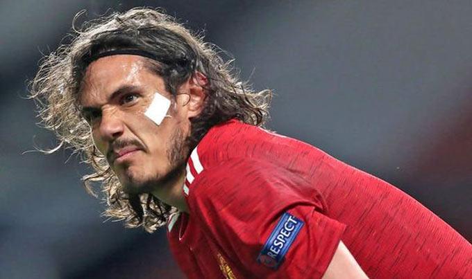 Kane tới sẽ làm khó cho Cavani khi anh vừa được gia hạn thêm 1 năm