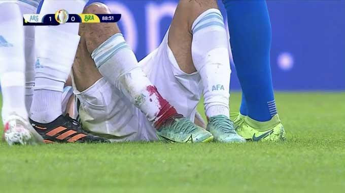 Trận đấu căng thẳng đến mức hậu vệ Gonzalo Montiel của Argentina còn chảy đầy máu ở chân